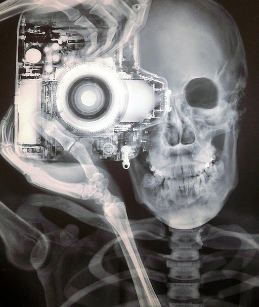 X ray Image of a Nikon Photographer xray mini