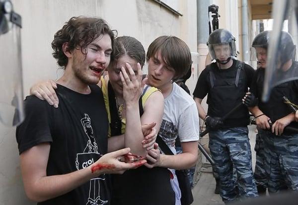 Photo by Dmitry Lovetsky/AP