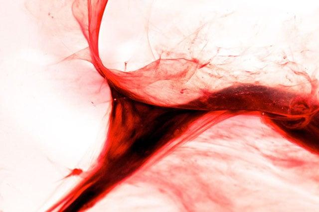twisted uterus