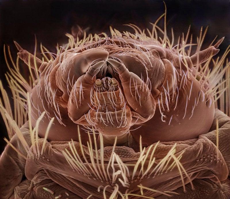 Bathroom Rug, August 2nd  [Carpet Beetle Larvae]