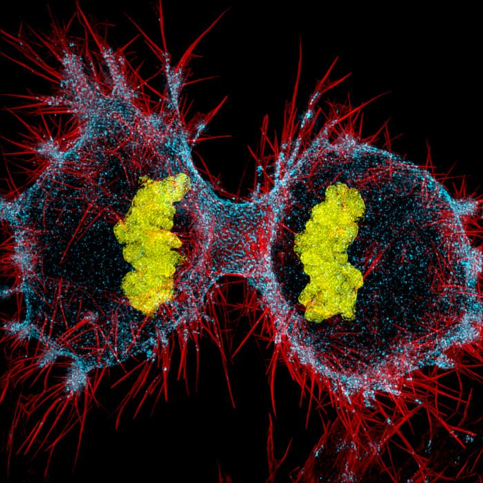 Human HeLa cell undergoing cell division | Photo credit: Dr. Dylan Burnette