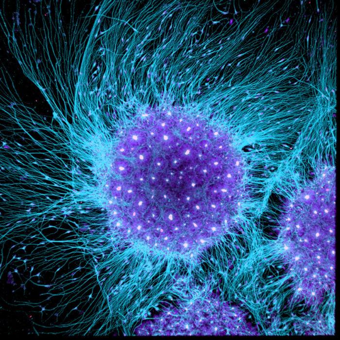 Human neural rosette primordial brain cells, differentiated from embryonic stem cells   Photo credit: Dr. Gist F. Croft, Lauren Pietilla, Stephanie Tse, Dr. Szilvia Galgoczi, Maria Fenner, Dr. Ali H. Brivanlou
