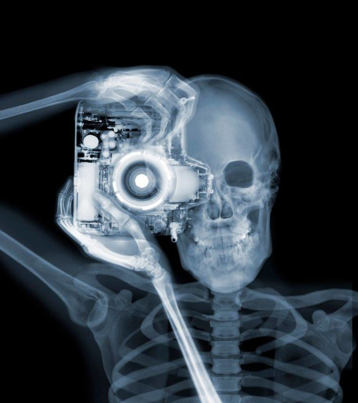 """Photographer,"" featured on PetaPixel back in 2011. Photo © Nick Veasey."