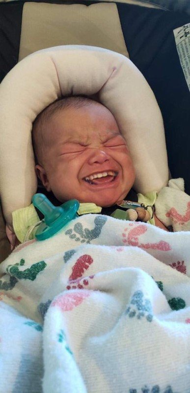 Photos of Babies with Grown-Up Teeth