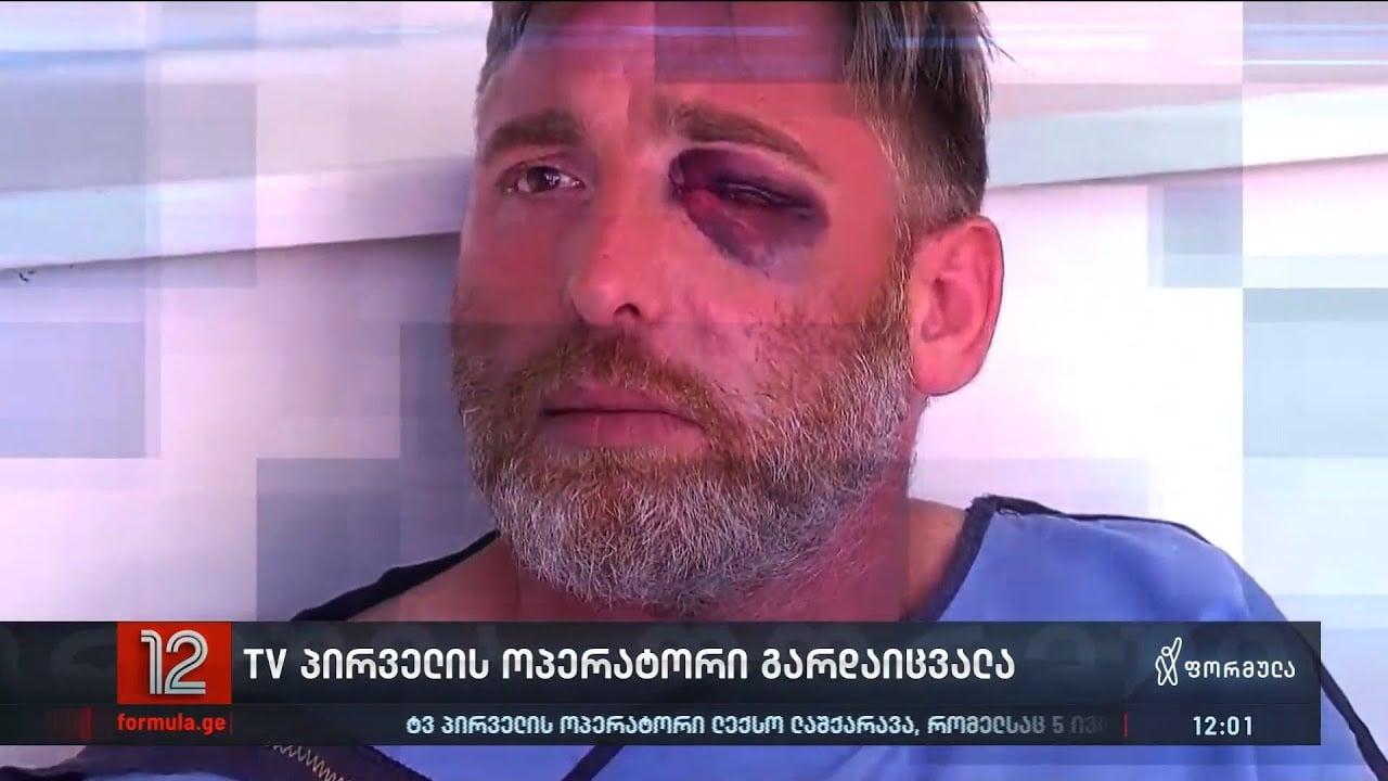 Un morto dopo l'aggressione violenta di media e giornalisti a Tbilisi, in Georgia